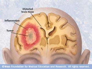 tumor ablation - health news - israel