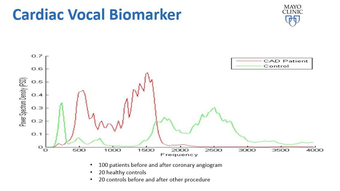 Beyond Verbal, CAD, Heart disease, voice. Courtesy