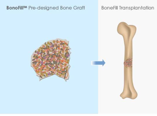 A diagram of the BonoFill bone graft transplantation. Courtesy