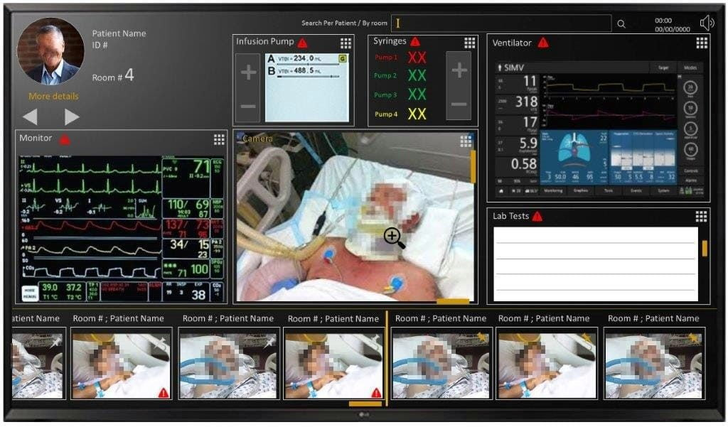 The 'cockpit' is a supervision system that makes it possible to collect data on ventilated COVID-19 patients. It is a system developed in collaboration with IAI, Microsoft, the Soroka Medical Center, and other partners. Photo: IAI