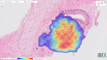 A heatmap view of a previously-missed prostate cancer detected by Ibex's Galen Prostate platform. Courtesy