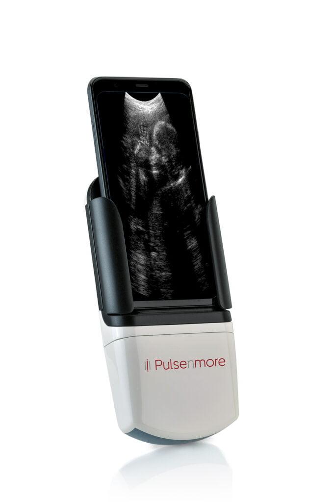 PulseNmore's handheld tele-ultrasound device. Courtesy