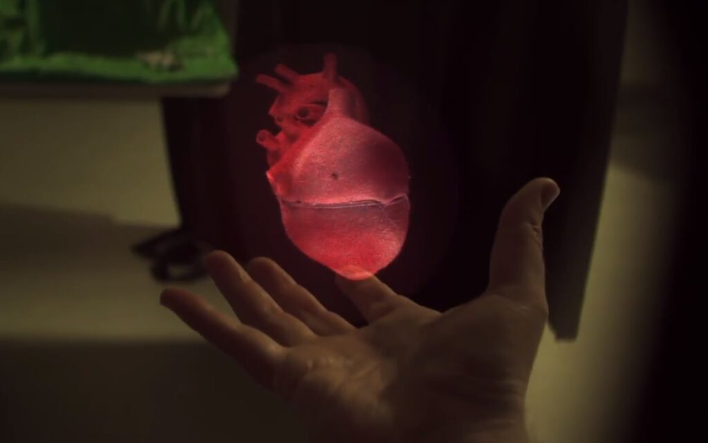 RealView creates digital 3D holograms in the physician's hand. Photo: Screenshot via RealView Imaging