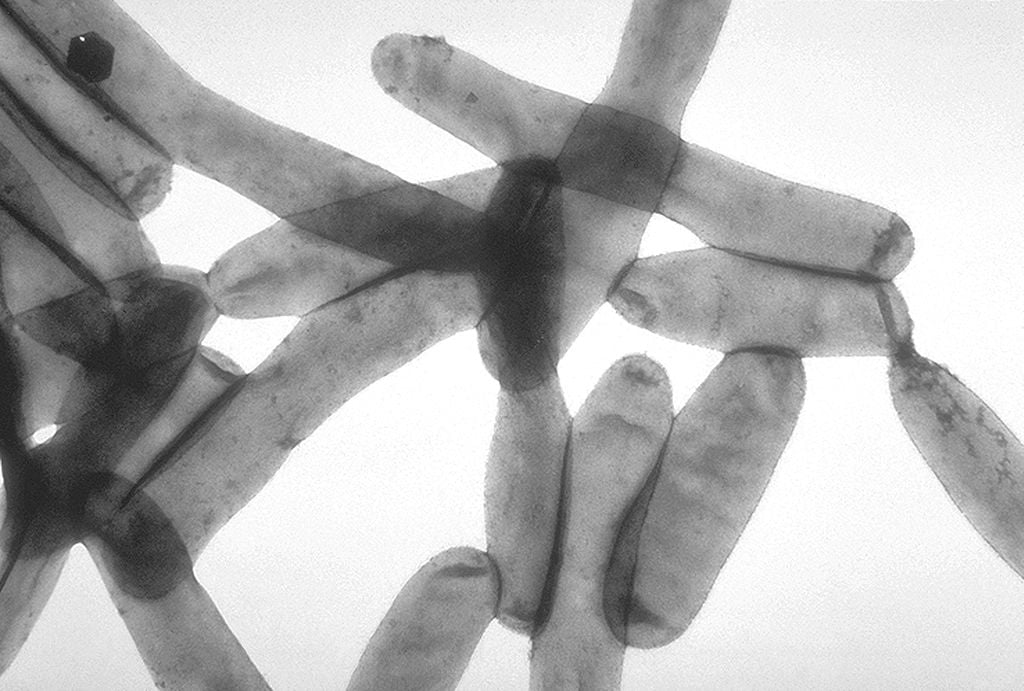 Transmission electron microscopy image of Legionella pneumophila, responsible for over 90% of Legionnaires' disease cases. Photo: CDC Public Health Image Library, Wikimedia, Public Domain